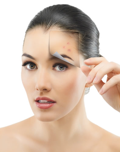 how-to-get-scar-free-skin-with-right-acne-treatment