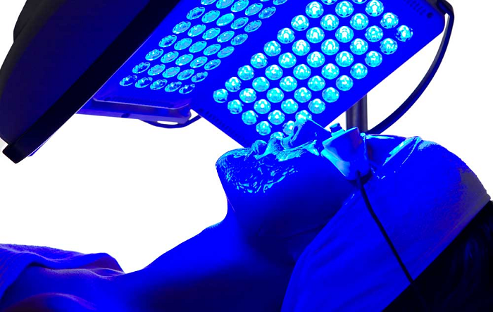 How Blue Light Therapy Can Help You Get Rid of Acne?