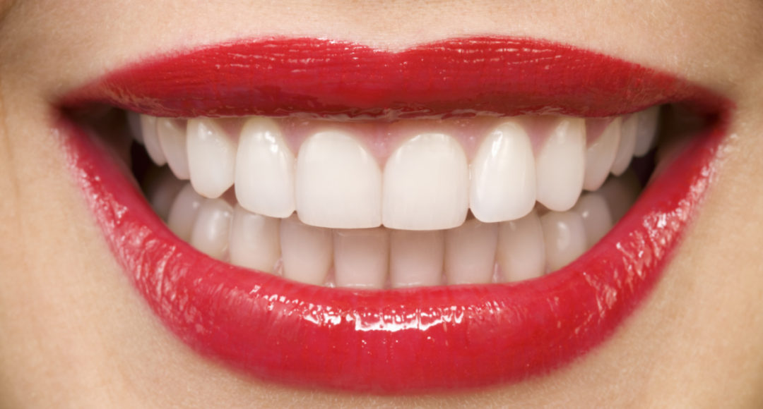 Quick Teeth Whitening Home Remedies
