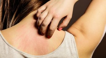 Ultimate Guide to Skin Rashes, Home Remedies & Treatment