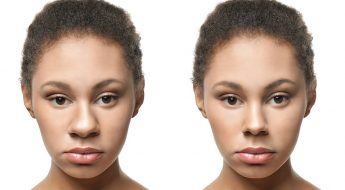 ethnic rhinoplasty benefits