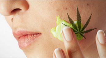 benefits of using CBD in Skincare