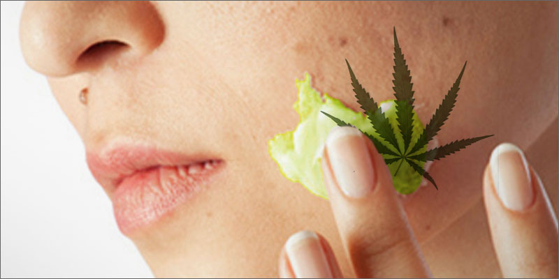 benefits of using CBD in Skincare
