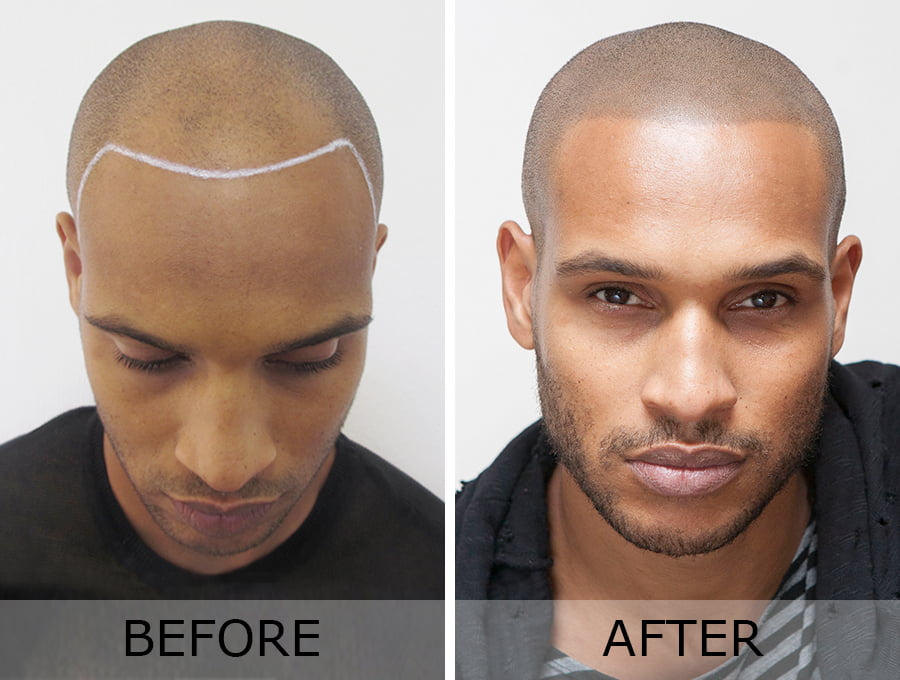 San Diego's New Trend – (SMP) Scalp Micropigmentation