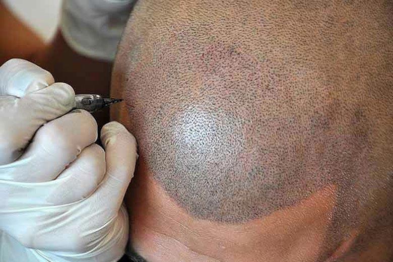 San Diego's New Trend – (SMP) Scalp Micropigmentation