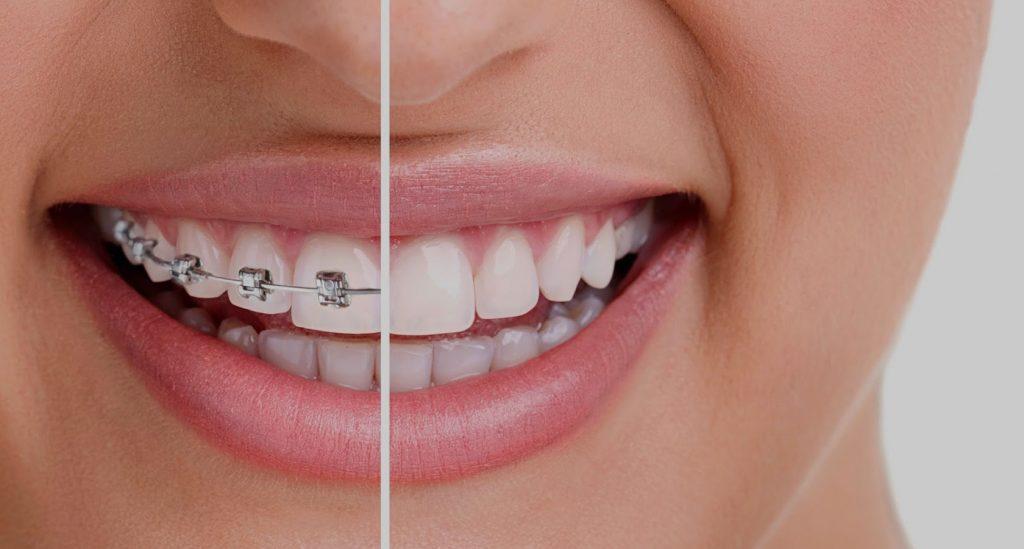 Orthodontist To Straighten Your Teeth