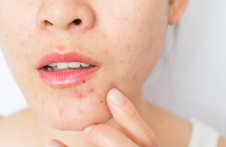 how to avoid acne scarring