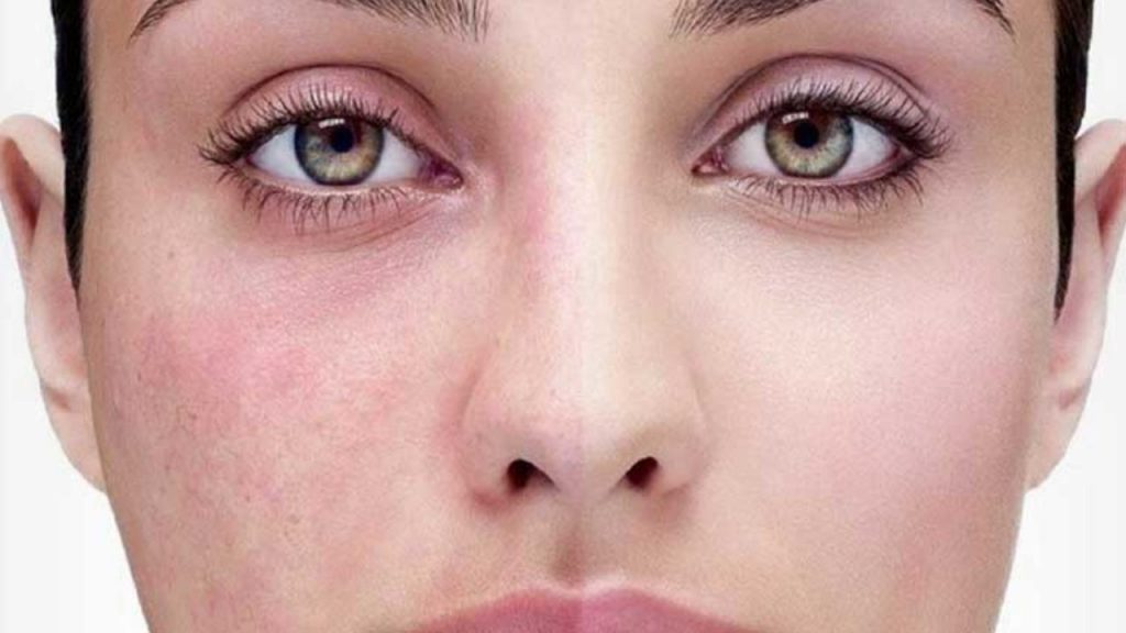 Is It Rosacea Or Just Redness?